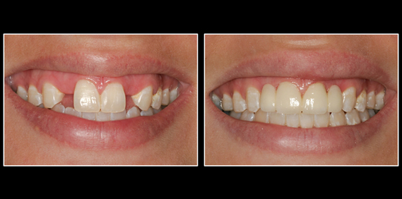 Dental Implants in Lansing, MI | Smile By Stone
