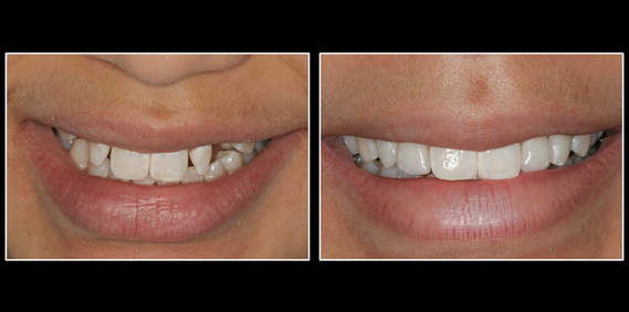 Dental Implants before and after in Lansing, MI Smile By Stone