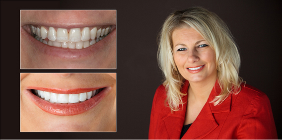 teeth whitening before and after dentist in lansing, mi