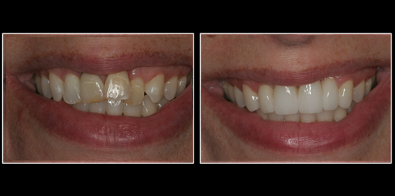 dental crowns before and after lansing, mi dentist